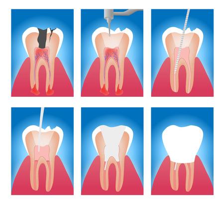 Illustration pour infographic stages of root canal treatment vector - image libre de droit