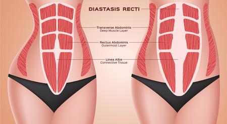Illustration pour diastasic recti . abdominal . before after pregnancy vector / anatomy - image libre de droit