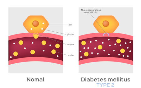 Illustration for Insulin type / normal physiology , diabetes / unlocks the cell's glucose channel animation graphic - Royalty Free Image
