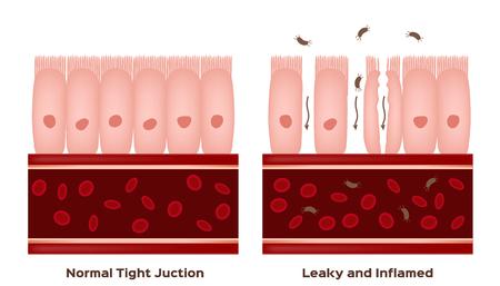 Illustration pour Celiac disease Small intestine lining damage. good and damaged villi . leaky gut progression - image libre de droit