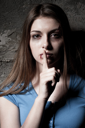 Do not be silent  Young beaten up woman looking at camera and holding finger on mouth while standing against dark wall