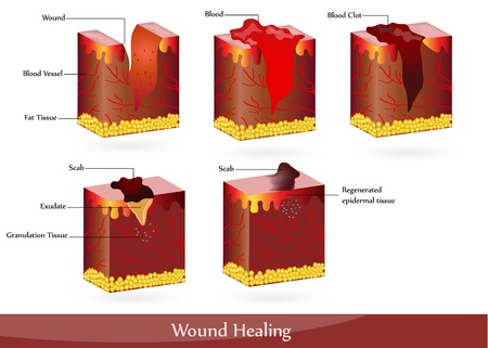 The process of wound healing. Illustration showing skin after injury, appears blood, then blood clot, then scab.