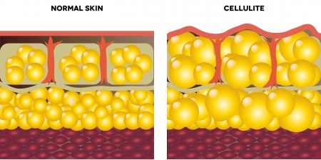Illustration for Cellulite and normal skin  Medical illustration, isolated on a white background  - Royalty Free Image