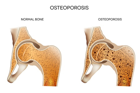 Osteoporosis  Medical illustration healthy bone and unhealthy bone- osteoporosis  Osteoporosis may leads to bone fracture