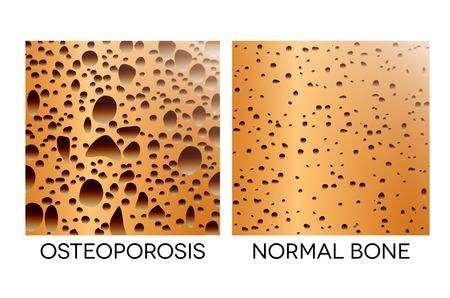 Osteoporosis, human bone anatomy. Medical illustration healthy bone and unhealthy bone.