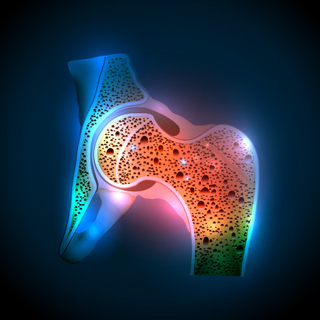 Illustration pour Human hip joint and Osteoporosis on a abstract blue background - image libre de droit