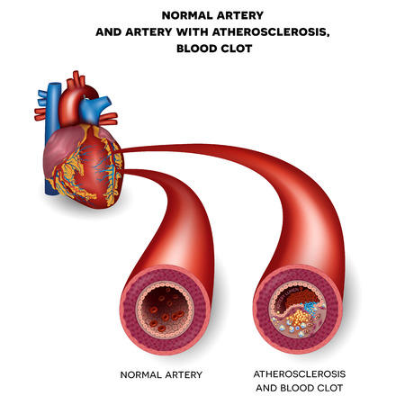 Normal artery and unhealthy artery with blood clot. Plaque rupture detailed anatomy illustration. Artery lumen is narrowed and lead to thrombosis