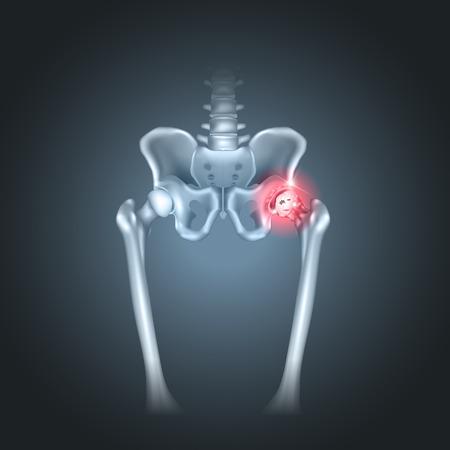 Human pelvis hip pain on a dark radial background