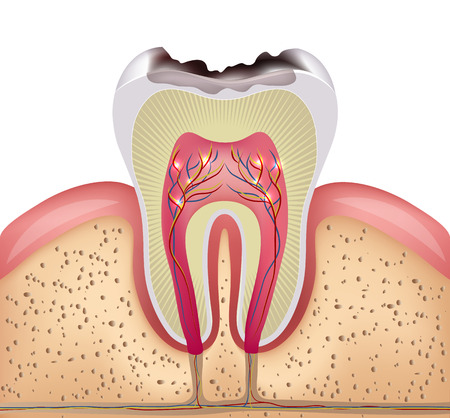 Illustrazione per Tooth cross section with dental caries, detailed illustration - Immagini Royalty Free