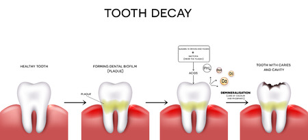 Tooth decay formation step by step, healthy tooth, forming dental plaque and finally caries and cavity