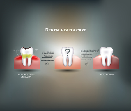 Dental health care tips. Diet without sugars, brushing, fluoride treatment etc. And tooth with caries failure to comply with hygiene