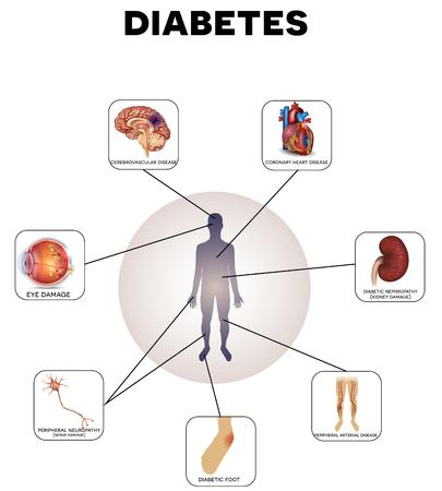 Illustration pour Diabetes complications detailed info graphic on a white background - image libre de droit