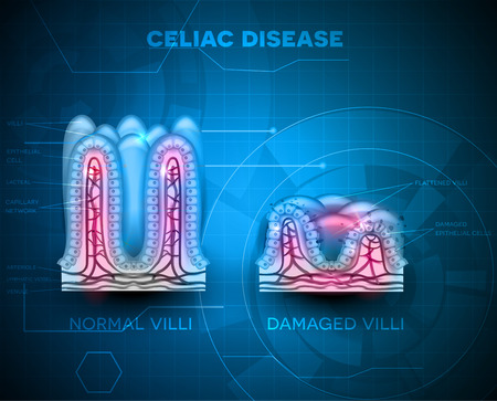 Celiac disease affected small intestine villi. Healthy villi and unhealthy villi with damaged cells on a blue technology background