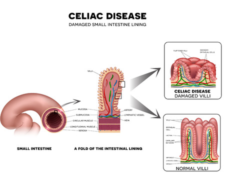 Celiac disease Small intestine lining damage. Healthy villi and damaged villi. Small intestine, a fold of the intestinal lining and villi.