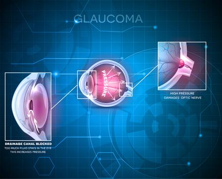 Ilustración de Glaucoma eye disorder abstract blue technology background - Imagen libre de derechos