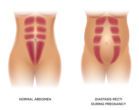 Illustration for Diastasis Recti during pregnancy, also known as Diastasis Rectus Abdominus or abdominal separation, it is common among pregnant women and post birth. There is a gap between muscles. - Royalty Free Image