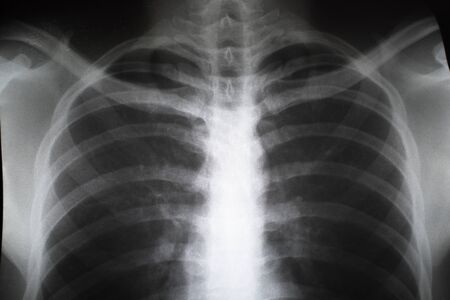 Photo pour Close up of X-ray film of male teen. Concept of Healthcare - image libre de droit