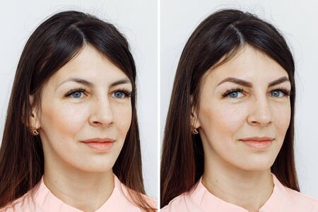 Photo pour Photo comparison before and after permanent makeup, tattooing of eyebrows for woman in beauty salon - image libre de droit