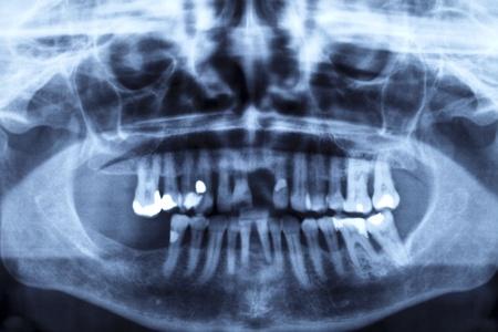 X-ray image of a damaged set of teeth