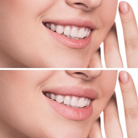 Foto de Beautiful female lips before and after augmentation - Imagen libre de derechos