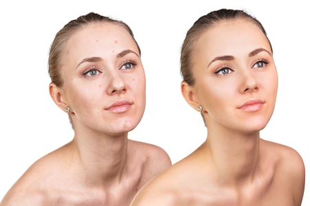 Photo for Comparative photos of young woman with skin problems. Before and after treatment. - Royalty Free Image