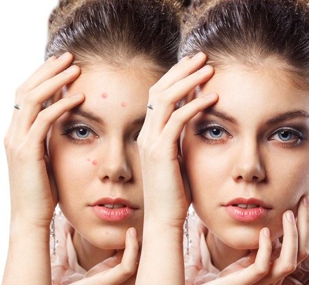 Photo for Young beautiful woman with problem skin on her face - Royalty Free Image