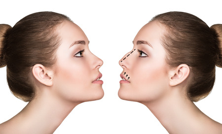 Photo pour Female face, before and after cosmetic nose surgery isolated on white - image libre de droit