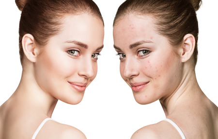 Photo pour Comparison portrait of young girl with problematic skin before and after treatment - image libre de droit