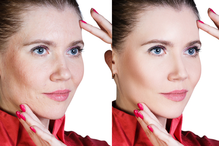 Photo pour Middle aged woman with aging singes, wrinkles, blemishes. Before and after cosmetic procedure. - image libre de droit