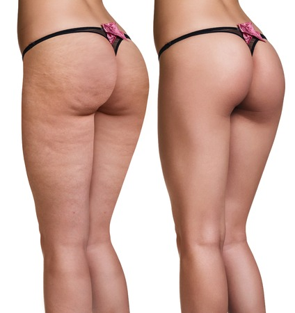 Foto de Female buttocks before and after cellulite skin isolated on white - Imagen libre de derechos