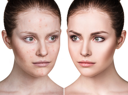 Photo pour Girl with acne before and after treatment. - image libre de droit