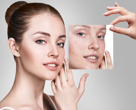 Photo for Woman shows photo with bad skin before treatment. - Royalty Free Image