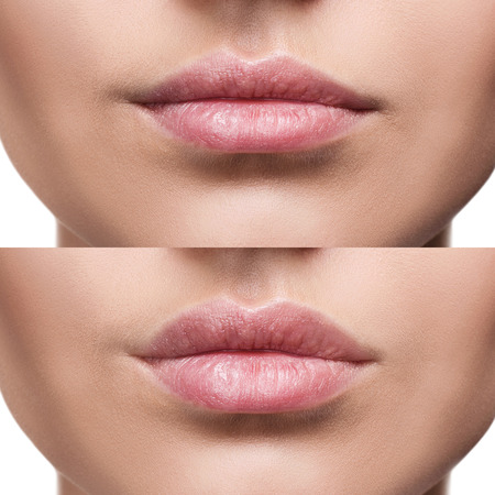 Foto de Lips of young woman before and after augmentation - Imagen libre de derechos