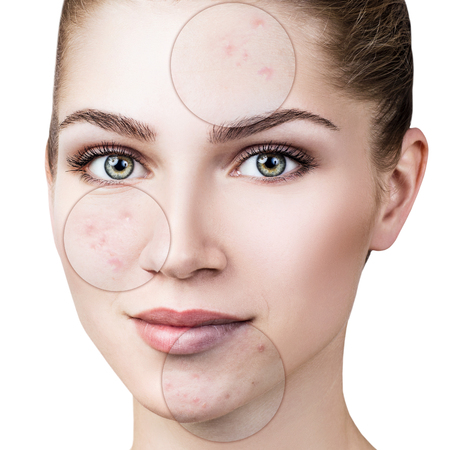 Circles shows problem skin of young woman.