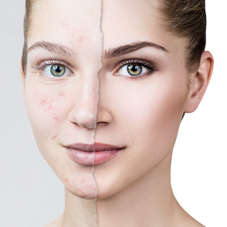 Photo pour Compare of old photo with acne and healthy skin. - image libre de droit