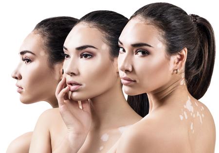 Photo pour Collage of beautiful woman with vitiligo disease. - image libre de droit