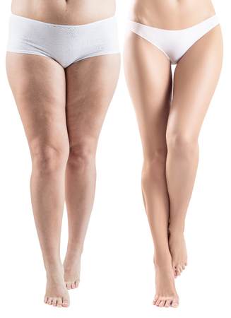 Photo pour Woman legs before and after slimming. - image libre de droit