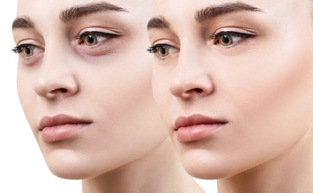 Photo pour Female eyes with bruises under eyes before and after cosmetic treatment. - image libre de droit