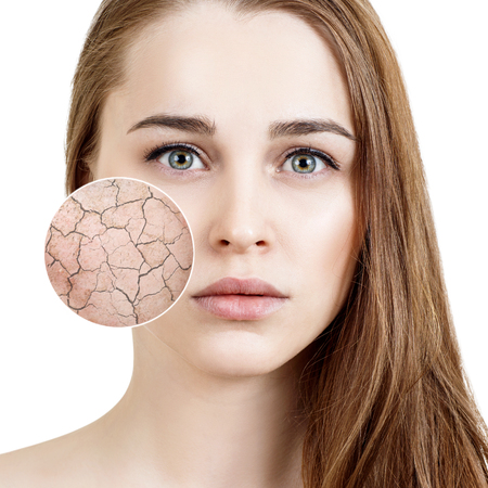 Photo for Zoom circle shows dry facial skin before moistening. - Royalty Free Image
