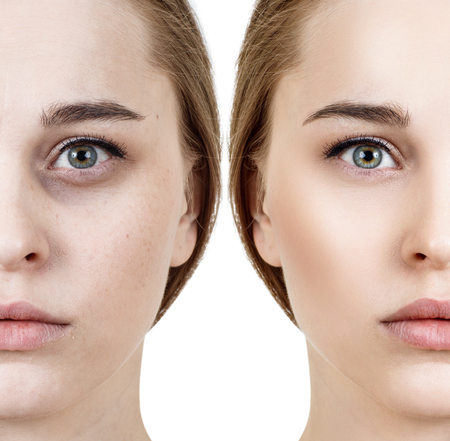 Foto de Woman with bruises under eyes before and after cosmetic treatment. - Imagen libre de derechos