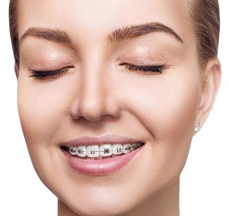Photo pour Young woman with braces on teeth. - image libre de droit