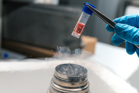 A Liquid Nitrogen bank containing suspension of stem cells. Cell culture for the biomedical diagnostic.