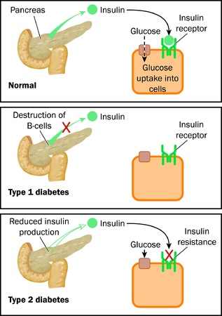 Normal insulin action, type 1 and type 2 diabetes