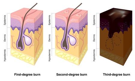 Skin burn levels