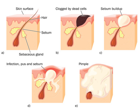 Drawing to show the stages of pimple formation, showing a clogged hair duct, sebum build up, infection and pus formation