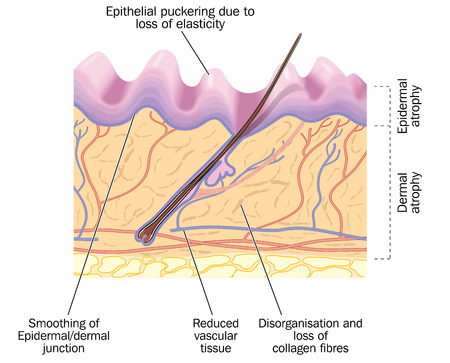Old skin, showing changes due to aging, including epithelial puckering and reduced collagen and vascular tissue. Created in Adobe Illustrator.  Contains transparencies.  EPS 10.