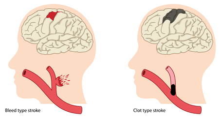 Two causes of stroke, a bleed type stroke and a clot type stroke.