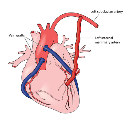 Ready Made Deisgns For Subclavian Vein