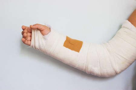 Photo pour broken arm of a little girl, in cast - image libre de droit
