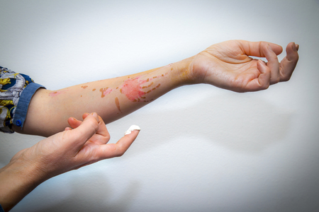 Treating human arm burnt with boiling oil with cream for skin burns